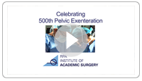 Celebrating 500th Pelvic Exenteration